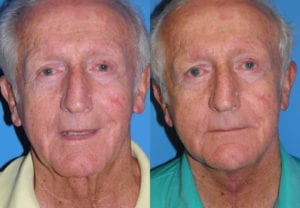 Patient 2a Male Facelift Before and After