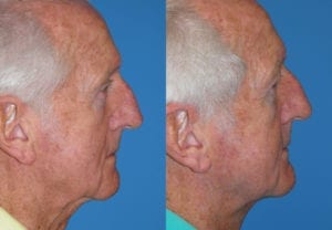 Patient 2b Male Facelift Before and After