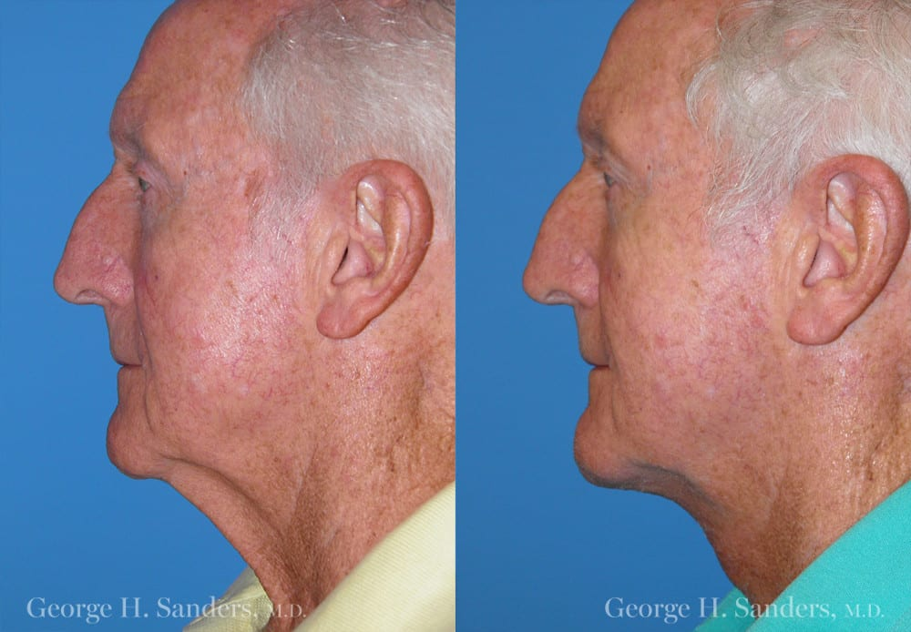 Patient 2c Male Facelift Before and After