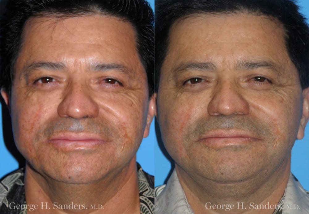 Patient 3a Male Facelift Before and After