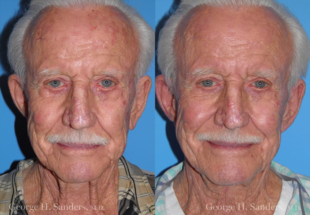 Patient 4a Male Facelift Before and After