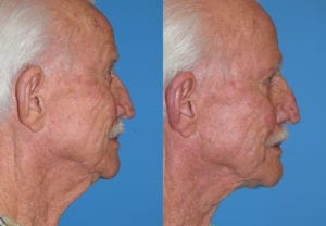 Patient 4b Male Facelift Before and After