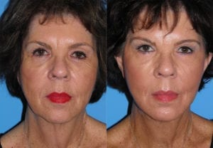 Patient 29a Laserbrasion Before and After