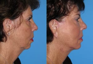 Patient 29b Laserbrasion Before and After