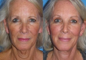 Patient 3a Neck Lift Before and After