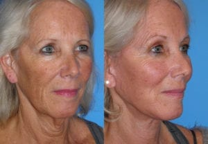 Patient 3b Neck Lift Before and After