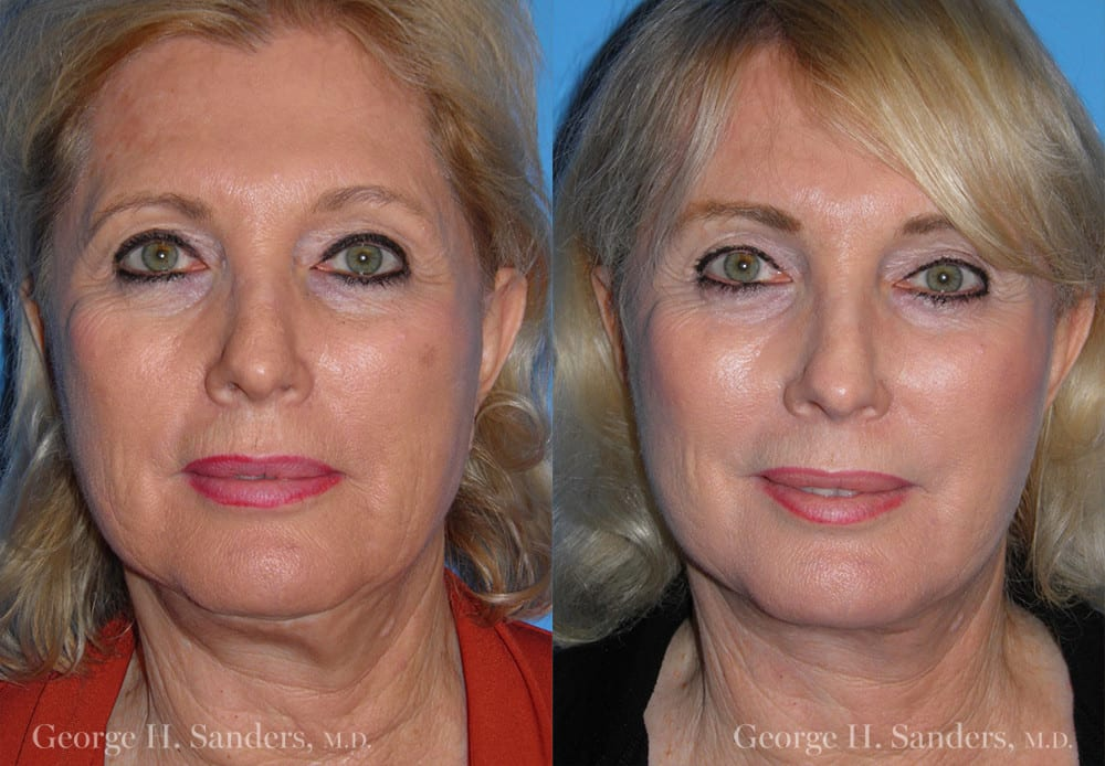 Patient 4a Neck Lift Before and After