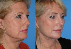 Patient 4b Neck Lift Before and After