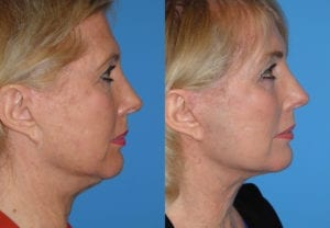 Patient 4c Neck Lift Before and After