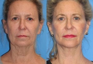 Patient 5c Neck Lift Before and After