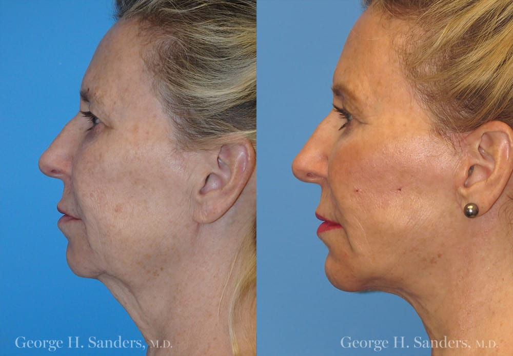 Patient 5a Neck Lift Before and After