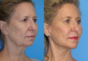 Patient 5b Neck Lift Before and After