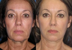 Patient 6c Neck Lift Before and After