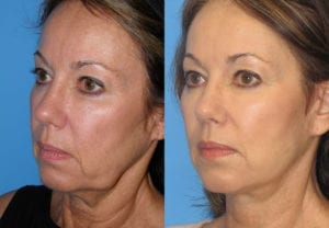 Patient 6b Neck Lift Before and After