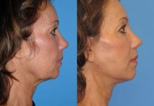 Patient 6a Neck Lift Before and After