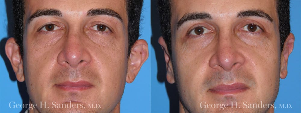 Patient 3a Otoplasty Before and After
