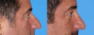 Patient 1a Rhinoplasty Before and After