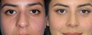 Patient 2c Rhinoplasty Before and After