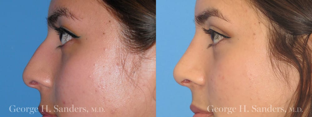 Patient 2a Rhinoplasty Before and After