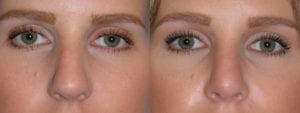 Patient 5b Rhinoplasty Before and After