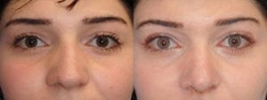 Patient 6c Rhinoplasty Before and After