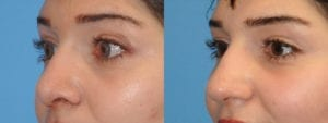 Patient 6b Rhinoplasty Before and After