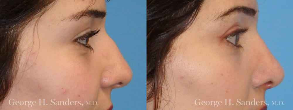 Patient 6a Rhinoplasty Before and After