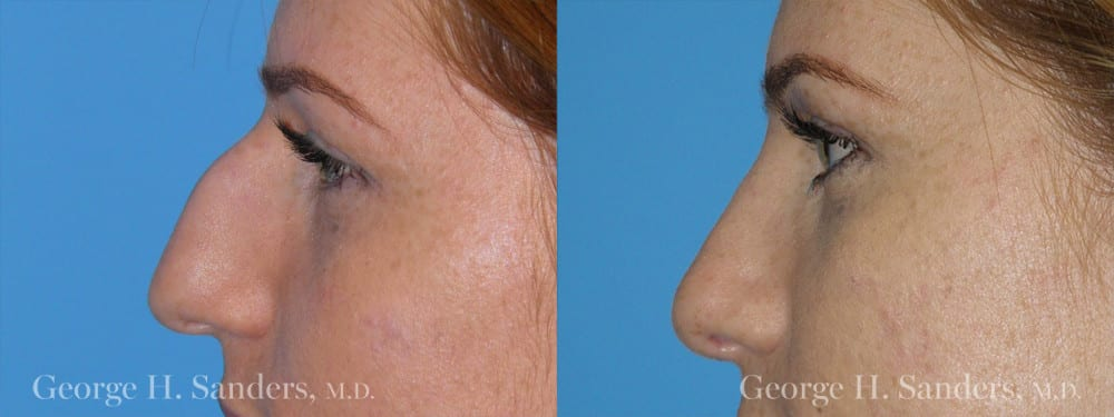 Patient 7a Rhinoplasty Before and After