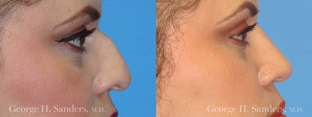 Patient 9a Rhinoplasty Before and After