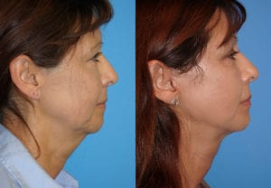 Patient 16c Face Lift Before and After