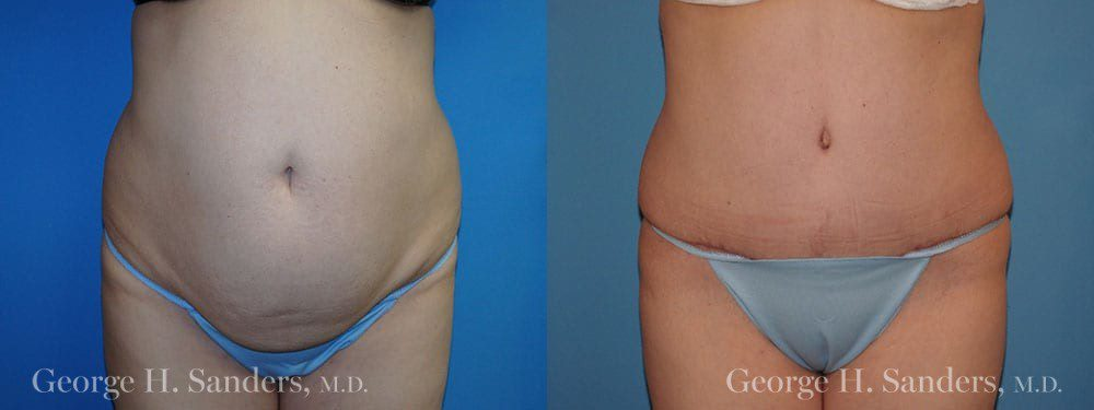 Patient 21a Tummy Tuck Before and After