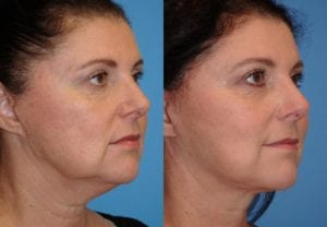 Patient 17b Face Lift Before and After