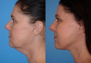 Patient 17c Face Lift Before and After