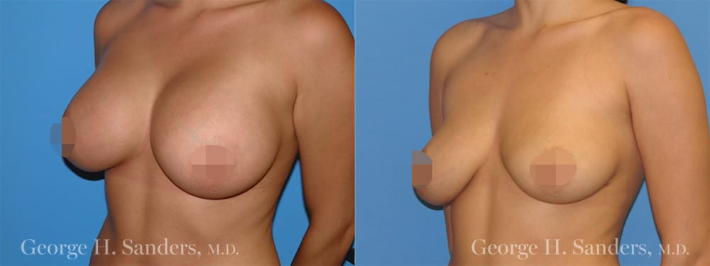 dr-sanders-los-angeles-Breast-implant-removal_patient-1-2_CENSORED