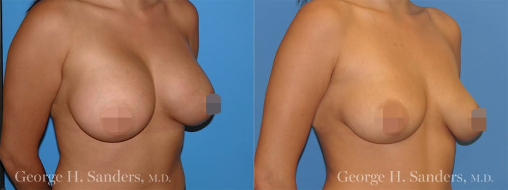 dr-sanders-los-angeles-Breast-implant-removal_patient-1-3_CENSORED