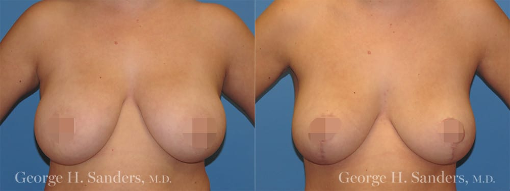 dr-sanders-los-angeles-Breast-reduction_patient-1-1_CENSORED