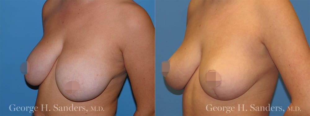 dr-sanders-los-angeles-Breast-reduction_patient-1-2_CENSORED