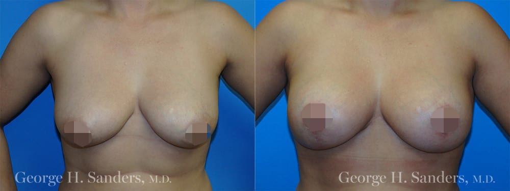 dr-sanders-los-angeles-Full-breast-lift_patient-1-1_CENSORED