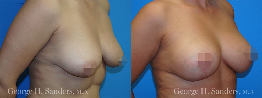 dr-sanders-los-angeles-Full-breast-lift_patient-1-2_CENSORED