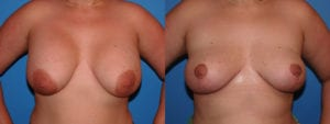 dr-sanders-los-angeles-breast-implant-removal-patient-6-1