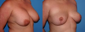 dr-sanders-los-angeles-breast-implant-removal-patient-6-2