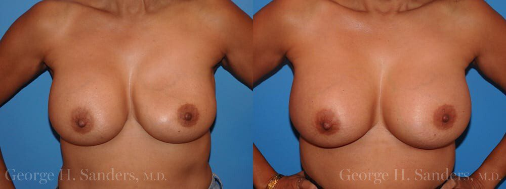 dr-sanders-los-angeles-breast-capsulectomy-patient-18-1