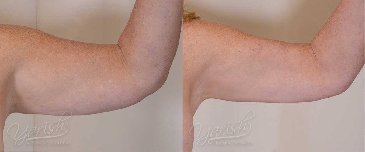 Patient 1 BodyTite Before and After Photo - Arm