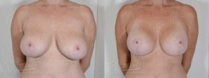 Patient 3 Breast Augmentation with Mastopexy Before and After Front View