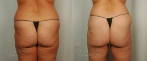 Patient 5 Cellulaze Before and After Back View