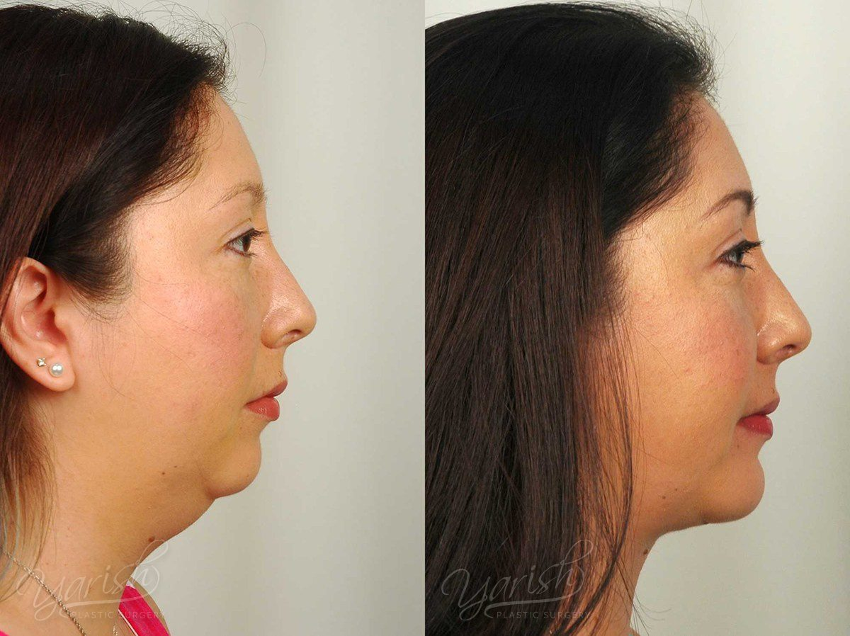 Patient 1 Facial Implants Before and After Right Side View