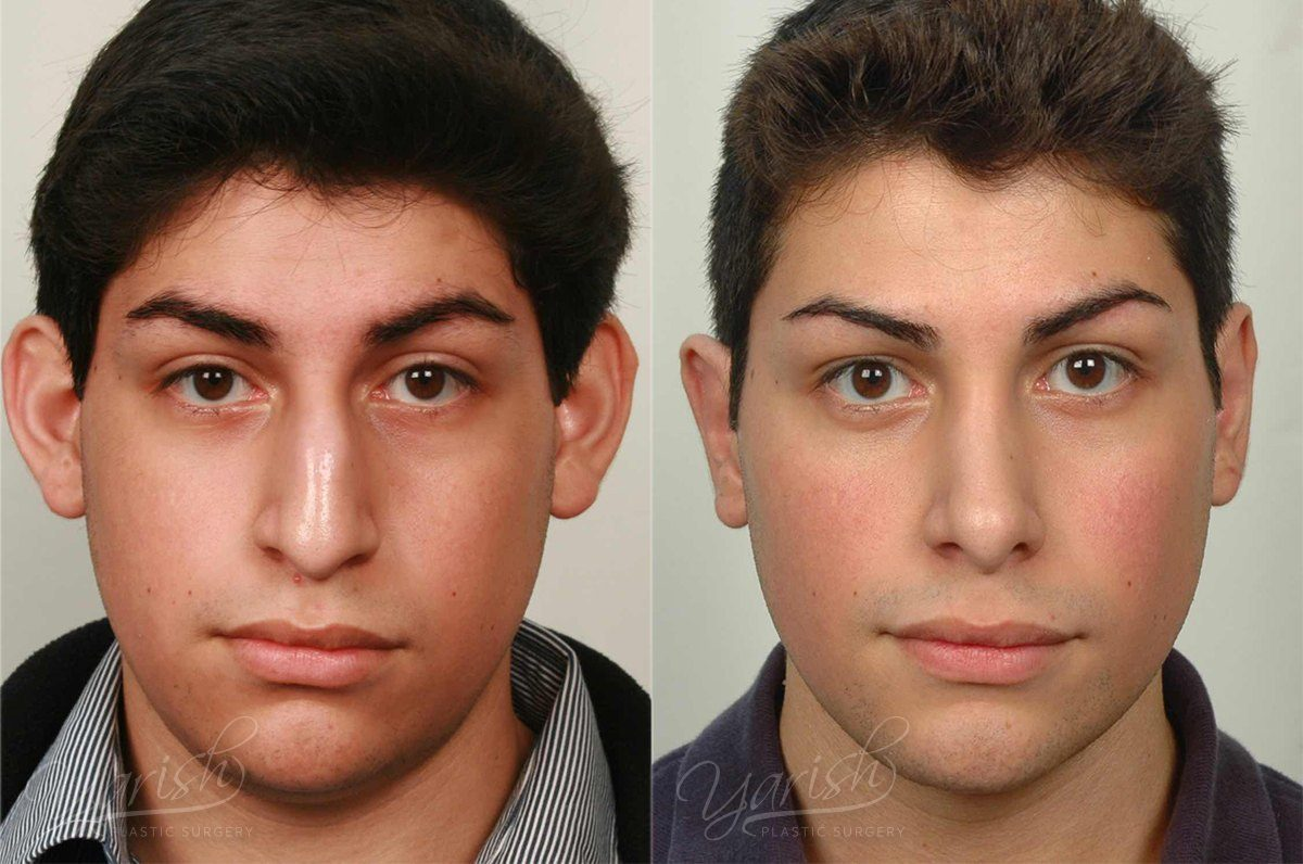Patient 1 Otoplasty Before and After Front View