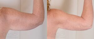 Patient 1 BodyTite Before and After Photo - Arm - 7 Months After