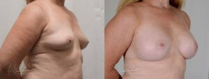 Patient 1 Breast Augmentation Before and After Right Oblique View