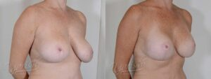 Patient 3 Breast Augmentation with Mastopexy Before and After Right Oblique View